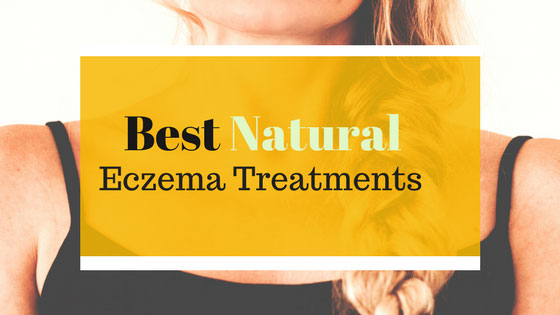 Best Natural Eczema Treatments