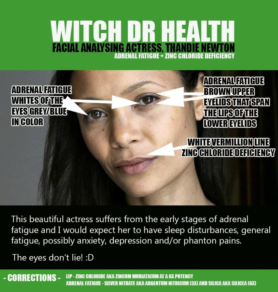 Mineral Deficiency Facial Analysis